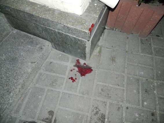 Зухвалий напад уцентрі Києва: підлітки побили і пограбували перехожого